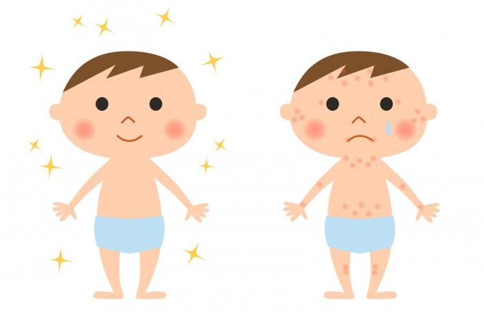 ¿Cómo aliviar la alergia con homeopatía?