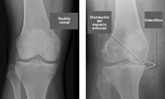Tratamiento homeopático para la artrosis