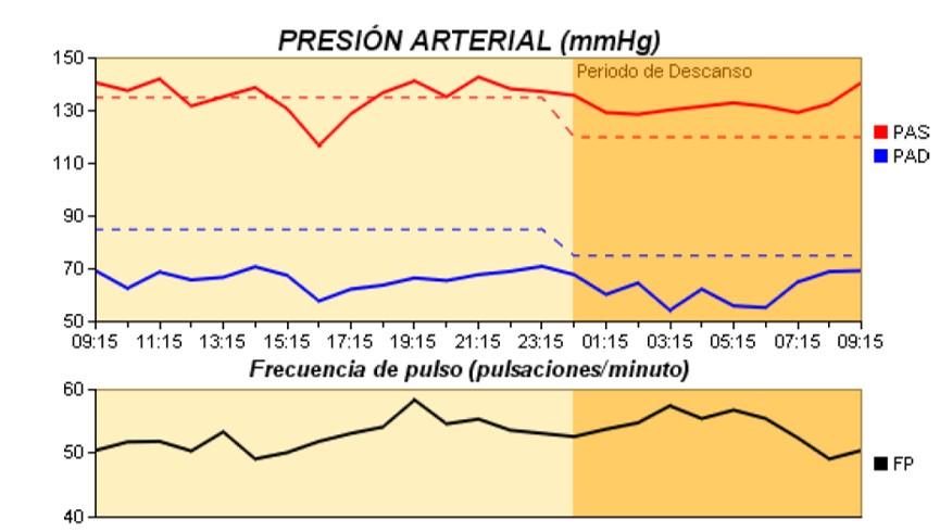Figura 5. Variabilidad de la tensión arterial. MAPA que muestra patrón circadiano alterado (non-dipper).