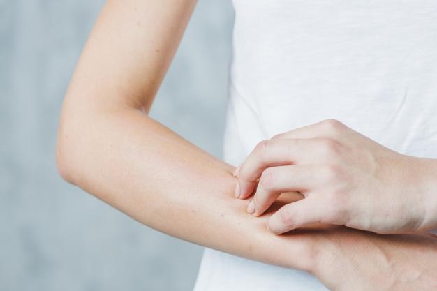 ¿Qué es el lupus? Síntomas y tratamiento con Homeopatía