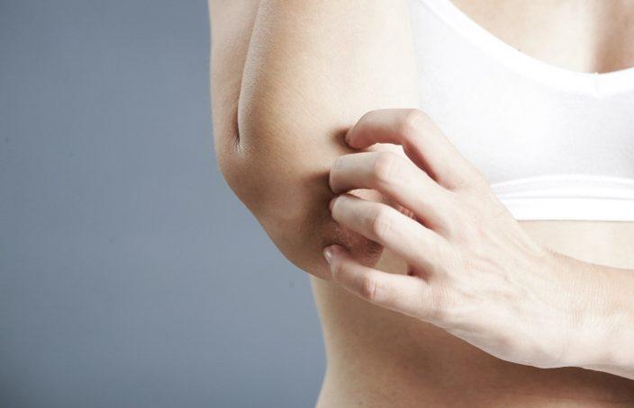 Imagen de una mujer con psoriasis en el brazo