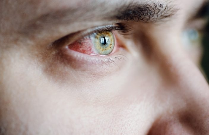 Tratamiento de la conjuntivitis con Homeopatía