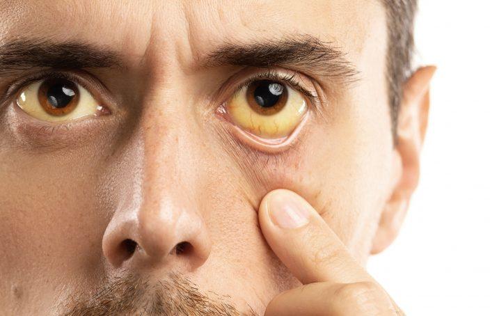 Hepatitis: qué es, causas, síntomas y tratamientos