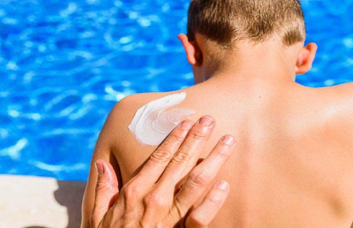 verano, quemadura solar, fotodermatosis, exposición solar, radiación solar, protección solar, fotoprotector, rayos UVA, homeopatía, medicamentos homeopáticos
