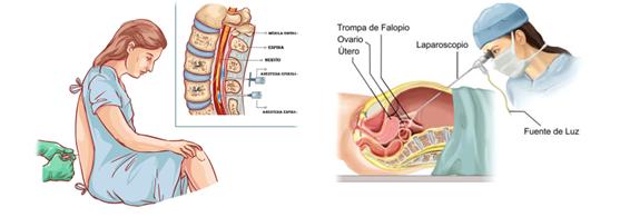 Bryonia para los síntomas después de laparoscopia y anestesia epidural