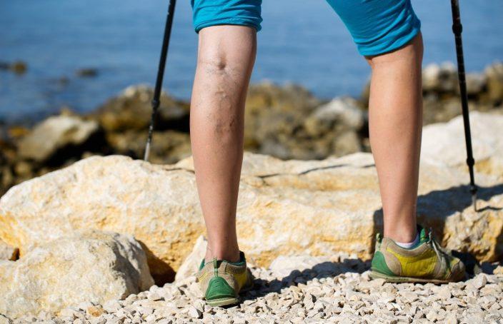 Imagen de varices en las piernas