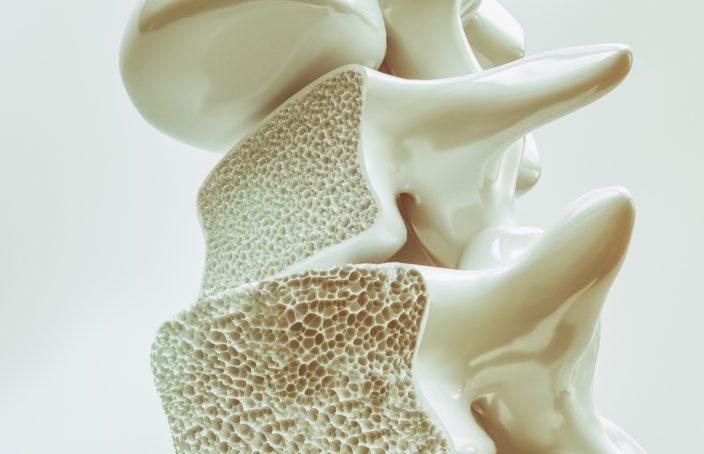 Qué es la Osteoporosis y cómo puede ayudarnos la Homeopatía
